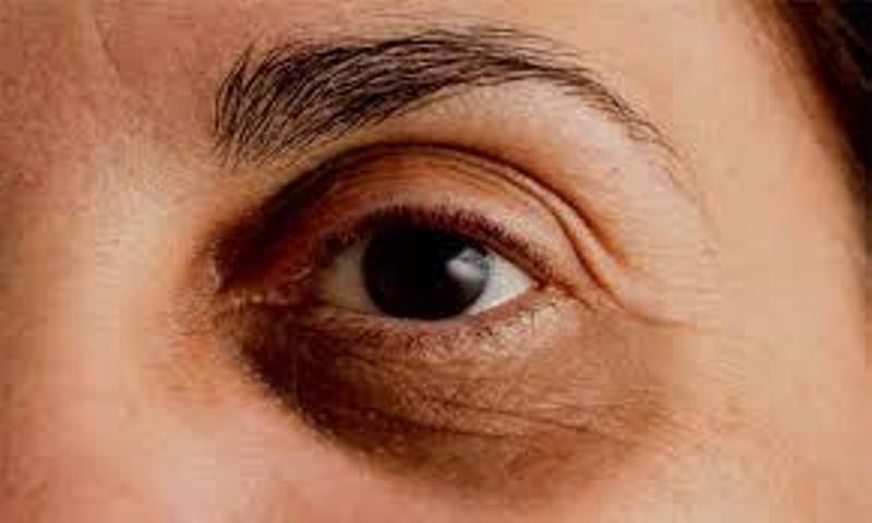 eye dark circle